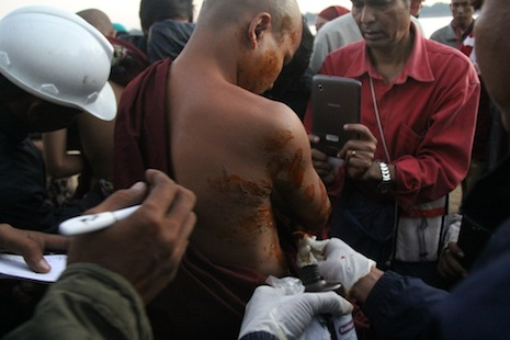 A Buddhist monk is treated after being burned in a protest crackdown in November