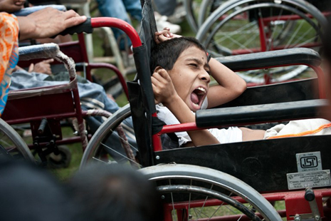 Birth defects from Bhopal rise again