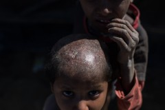 Rohingya: divided by age and a desire for retribution